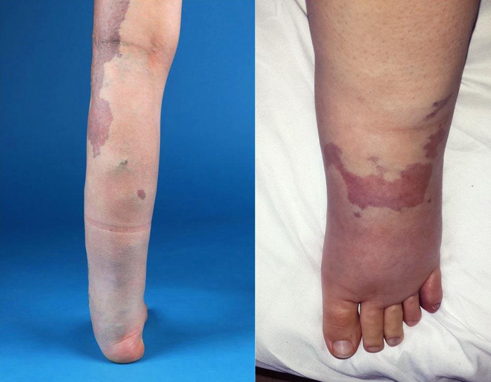 Bein dicker das linke als rechtes Ein Bein